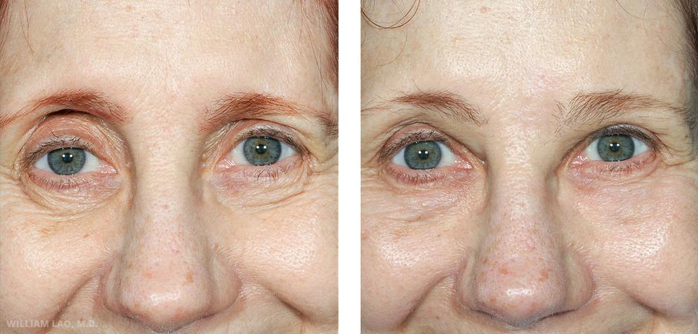 B,61 歲,白人   B小姐因她不對稱的眉毛來求診。她的左眉曾在多年前受傷,此後左眉位置便一直比右眉低。此案例採內視鏡上額拉提手術來提升左眉位置,並搭配脂肪移植來改善右眼窩的凹陷問題。請看當她抬眉時的眉毛位置,全臉尤其是右上眼皮的改善。   瞭解更多