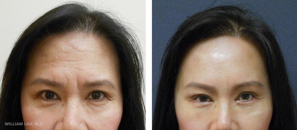 W,62 歲,亞裔   W小姐懷著對自己前額及眉間皺紋和沉重的眉毛等憂慮來求診。諮詢過後,我們決定採用提眉及前額拉提手術來消除皺紋。同時也使用下眼瞼整形術來改善她的眼袋及移除多餘皮膚。   瞭解更多