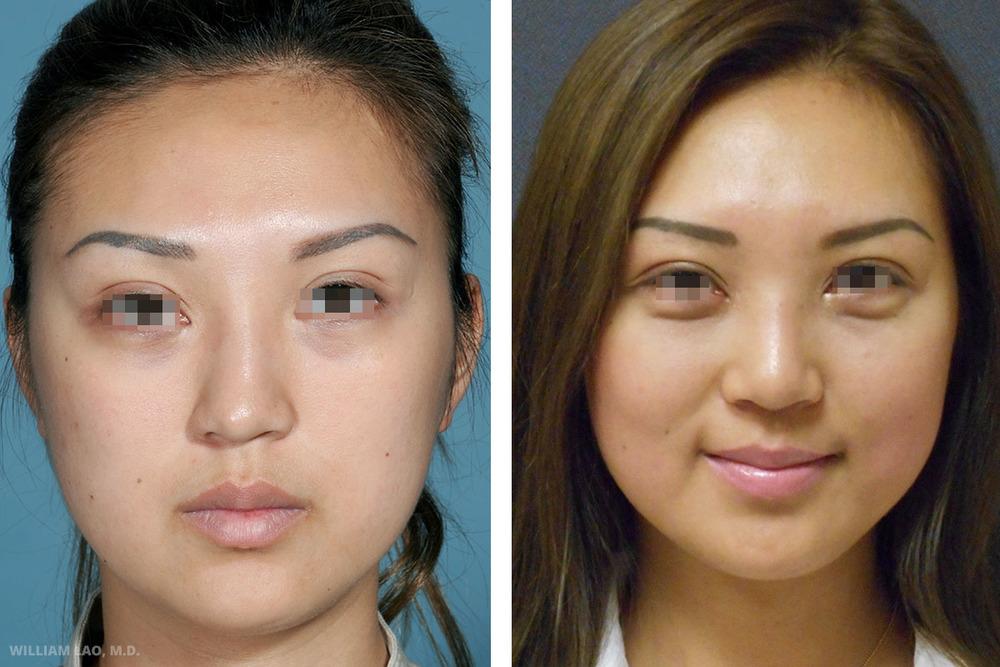 S,27 歲,亞裔   S是一位紐約房地產仲介。幾年前曾在中國注射一種不知名的物質到鼻子裡。據她表示,診所告訴她該物質是玻尿酸,但是該物質不但未隨時間消退,反而越長越大。她越來越擔心,因此前來諮詢。檢查時,明顯感受到她鼻根附近有個圓形團塊,而且扁平的鼻頭也有明顯歪斜。我們使用開放式整鼻手術移除她鼻子裡的異物、拉直鼻子,並使用自體軟骨移植來突顯鼻頭。儘管只是一個微小的改變,外觀卻大幅的改善,而且容貌相當自然,看不出手術痕跡。   瞭解更多