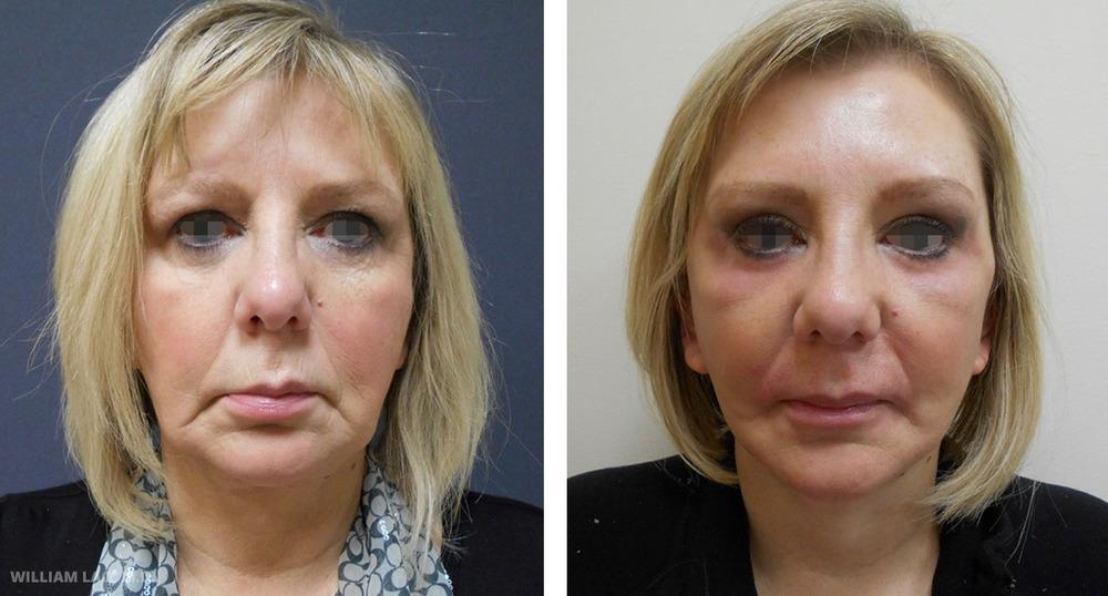 D,58 歲,白人   D曾在其他醫院做過臉部拉皮手術,但對術後結果不滿意。她覺得自己看起來和術前並沒有太大差異。駱醫師為她進行了第二次臉部拉皮及前額拉提手術來修飾鬆垮的下半臉及沉重的眉毛。她看來立刻年輕了10歲,眼睛也變大了。   瞭解更多