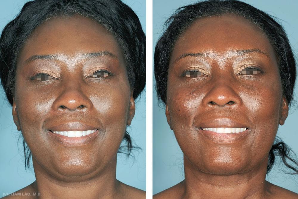 D,49 歲,非裔美國人   D是我同一家醫院工作的護士。她經常抱怨她的「雙下巴」。頸部拉皮及抽脂手術改善了她脖子及下頦的整體輪廓。   瞭解更多