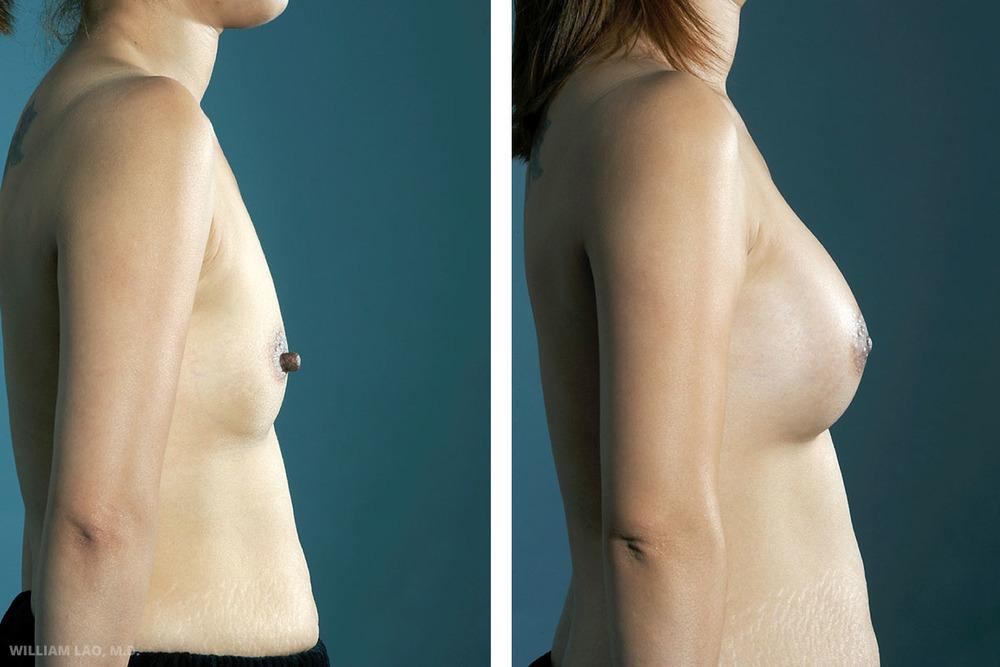 M,35 歲,亞裔   M是一位35歲的亞裔女性,育有一子。由於哺乳後造成乳房塌陷,她希望豐胸以及縮小乳頭。經過討論後,進行了腋下隆乳手術並同時將她的乳頭縮小。她非常欣喜能夠同時隆乳及縮小乳頭,而且沒有人看出她曾動過手術。   瞭解更多