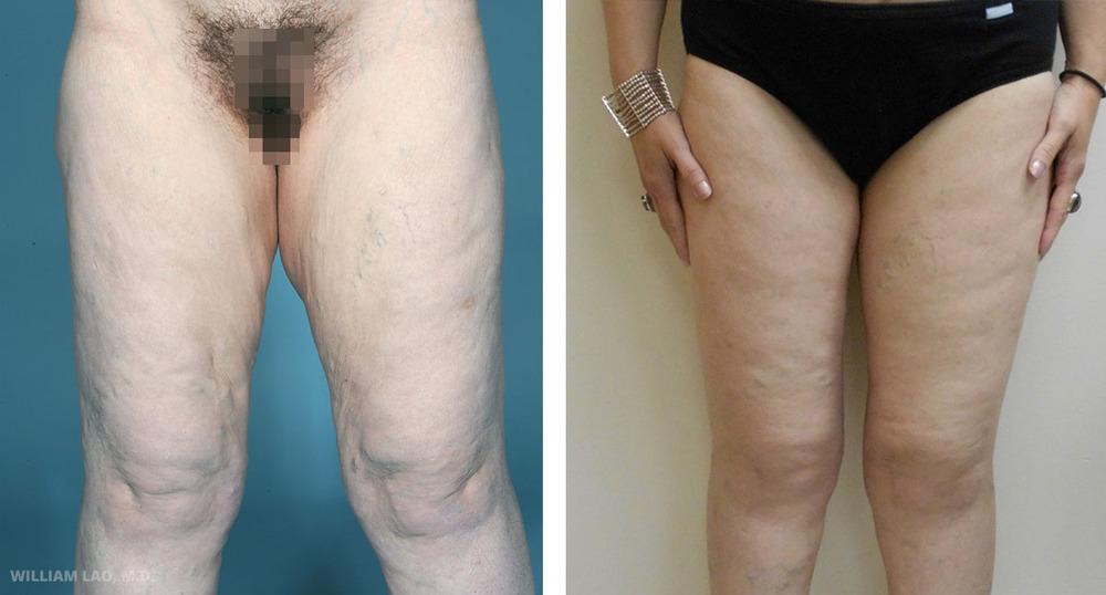 D,45 歲,白人   D曾透過大幅減重手術在短時間內減了大量體重。她曾找我做過提乳及隆胸手術,現在回來希望進行大腿的雕塑。替她進行了大腿內側拉提以切除多餘的皮膚及脂肪。請看術後消失的大腿內側皮膚與脂肪及大腿輪廓的改善情形。   瞭解更多