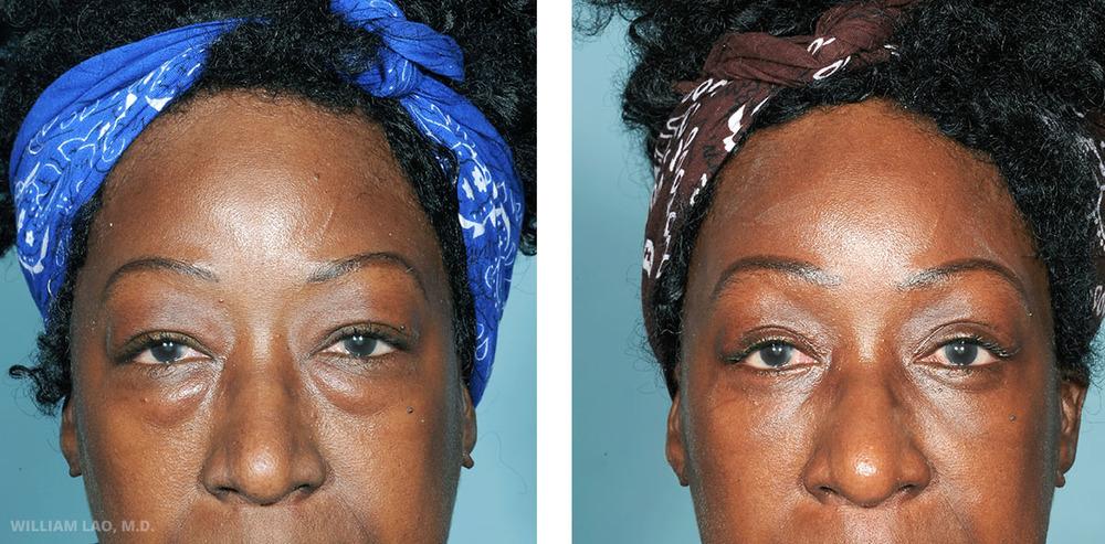 G, 59, 美籍非裔女性   G是一位59歲女性,從小便一直為自己浮腫的上眼皮及下眼瞼所困擾。她最煩惱的是下眼袋。眼袋讓她看起來疲憊、浮腫、像每天熬夜。經過討論及診察她的皮膚狀況後,決定由眼瞼內部進行手術以避免切口在外在皮膚上。所有多餘脂肪均透過一個微小的切口移除。注意看看,眼袋消失了!   瞭解更多