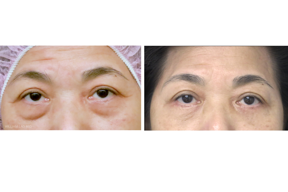 L,59 歲,亞裔   L 一直被自己的學生說她的眼袋很大,一定要處理一下。 進行外開眼袋手術後,兩眼突出的眼袋不見了,整個人看起來年輕多了。   瞭解更多