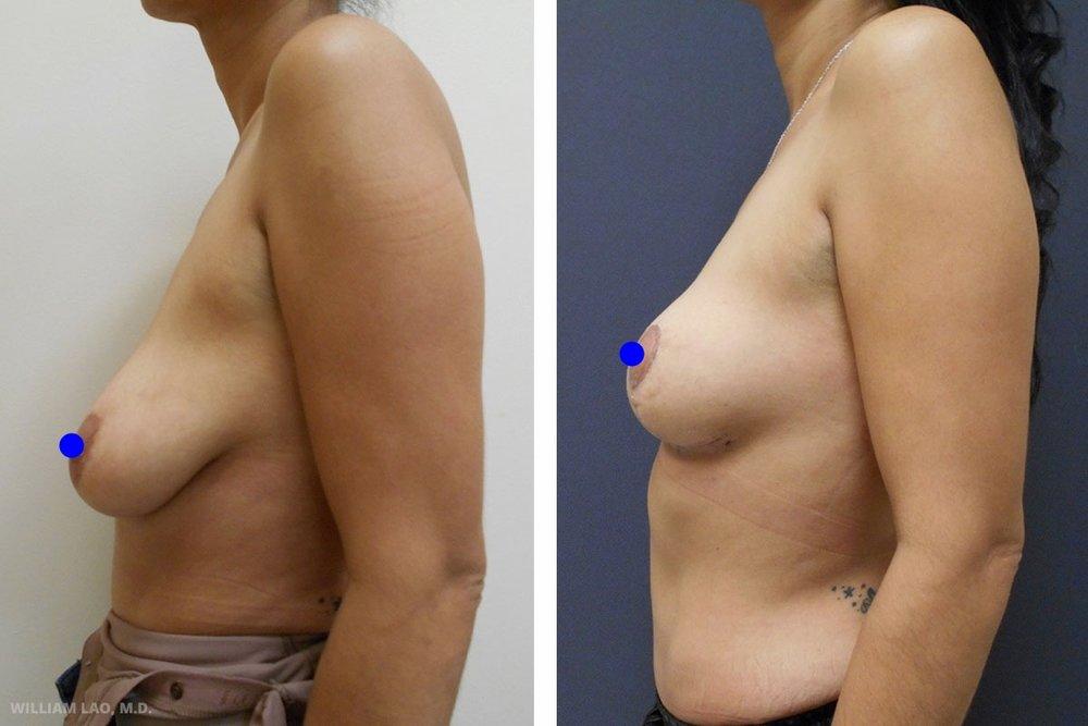 M,41 歲,白人   M大約在一年前透過節食及運動大幅瘦身。她是兩個孩子的母親,曾動過腹部整形手術改善身體曲線。現在她希望有一個能搭配腹部的胸部。經過討論後,她選擇不需填充物的提乳手術來拉提乳頭位並擁有看來豐滿堅挺的胸部。   瞭解更多