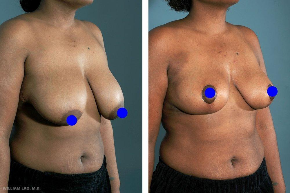 A,26 歲,女性   26歲的A長期飽受天生大胸部所造成的肩頸拉傷之苦。巨大的下垂胸部不僅造成她胸下周期性的紅疹,也讓她找不到想穿的衣服。她的胸罩多數須特製,也缺乏設計感及選擇性。她來諮詢時,我們討論到她想要的胸部大小、手術切口的位置及可能的復原過程。做過許多功課的她問了我許多關於細節的好問題,例如乳暈的縮減、能取出多首重量以及希望的新罩杯尺寸。   瞭解更多