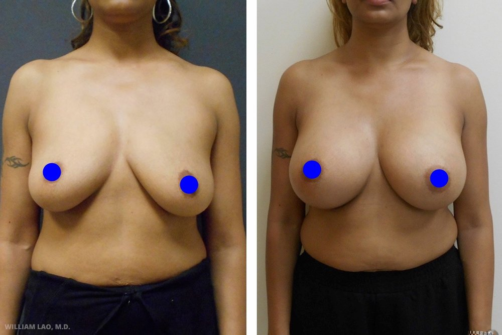 D,40 歲,印度裔   D自從生下兩個孩子後便覺得胸部有塌陷的現象。她很自豪年輕時天生的雙D罩杯,希望能回復當年風采。看看她術後豐滿的上圍及堅挺的乳頭。   瞭解更多