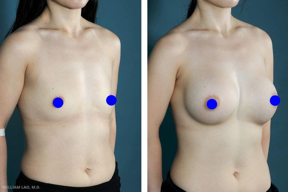 L,32 歲,亞裔   L是我們醫院一位員工的妻子,精通韓語中文和英語。她身材嬌小且胸部扁平,而且胸部在胸腔壁的下方。在諮詢時她向我表示她不喜歡胸部宛如「鬆餅」一般的外型。她強調在穿著較女性化的衣服時會有難度。基於亞洲人對於疤痕的普遍看法以及她不希望正面可看到任何疤痕等理由,採行了腋下內視鏡隆乳手術。   瞭解更多