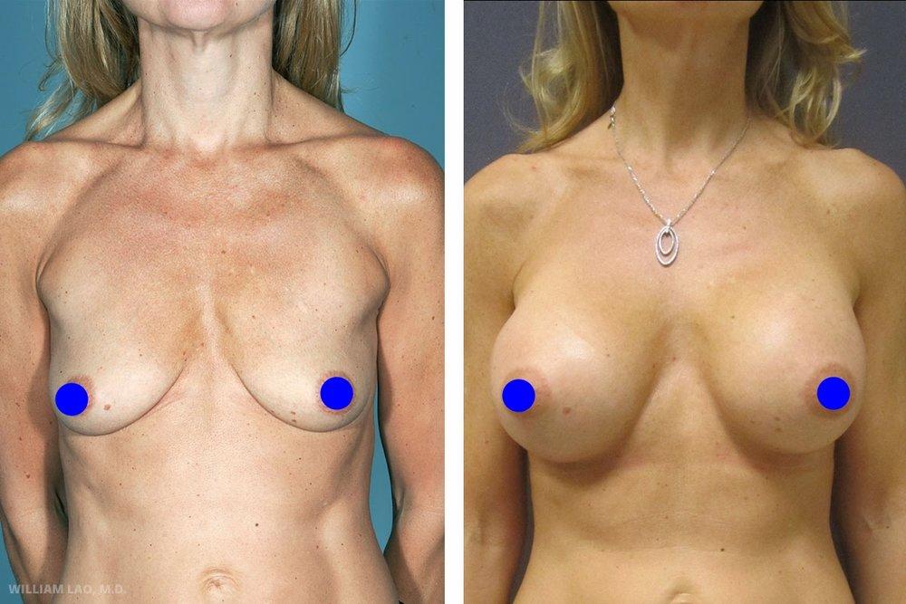 M,46 歲,退休模特兒   M是一位非常美麗的瑞典女性。她曾在曼哈頓擔任模特兒,現在是全職的家庭主婦。她希望能夠恢復從前的胸部大小及形狀。由於身高6呎(183公分)且寬肩,她希望胸部至少能有D罩杯。諮詢後,採行了由乳房下緣植入不同尺寸的矽膠來改善兩乳不對稱的問題。她非常滿意術後結果並覺得自己又回復了年輕時的樣貌。   瞭解更多
