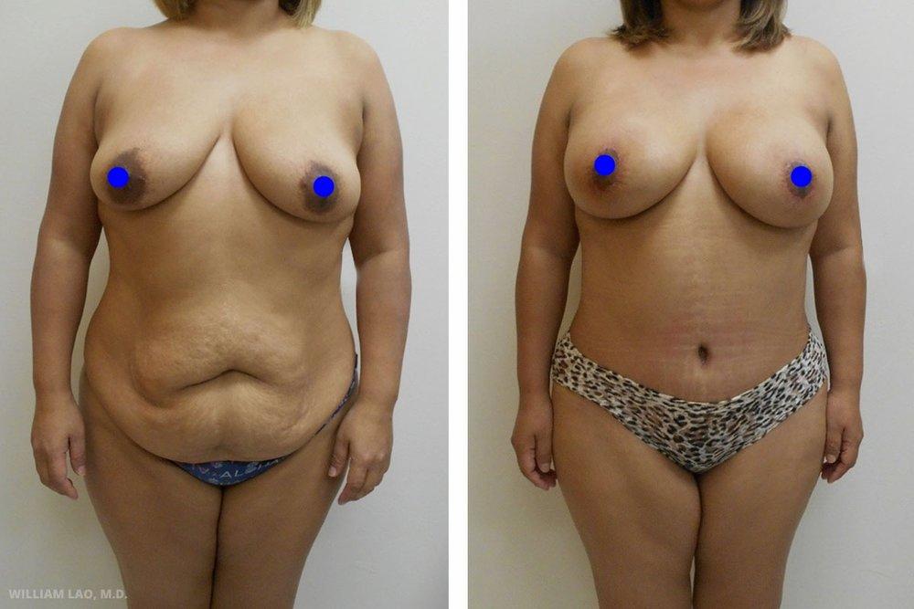 C,41 歲,白人   C是一位41歲的女性,曾做過隆鼻手術,並對手術結果相當滿意。她回來諮詢胸部及腹部手術。她的女兒已步入青春期,而C始終希望矯正自己肚子及胸部下垂的狀況並擁有D罩杯。討論後,決定結合隆乳提胸手術加上腹部拉皮/抽脂一併進行。   瞭解更多