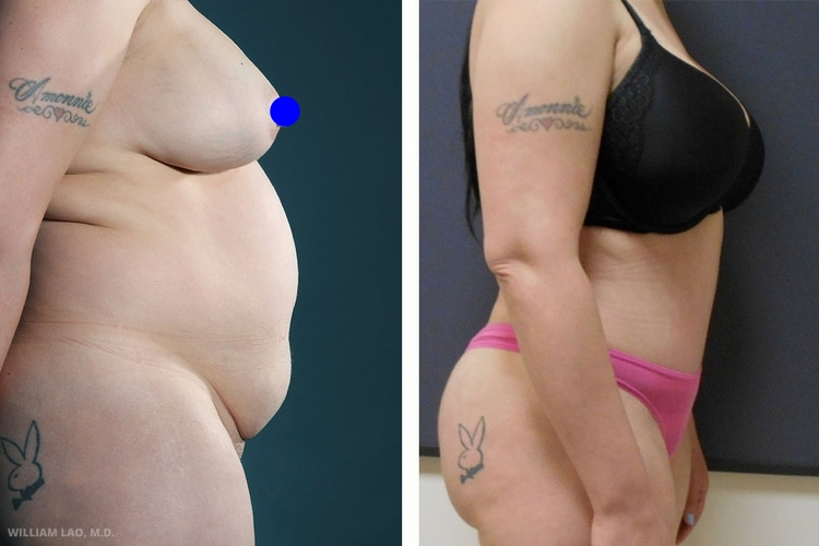 N,42 歲,白人   N育有兩名子女。她在附近的醫院上班,經由朋友的介紹來求診。她最煩惱的問題是突起的肚子。她試過運動和節食,但都無法達到她理想中的身形。經評估後發現,她有厚厚的腹壁及許多多餘脂肪。腹部的肌肉也因為前幾次的懷孕而鬆散。為了她渴望的緊實平坦的腹部,採取了重點抽脂的拉皮手術。   瞭解更多
