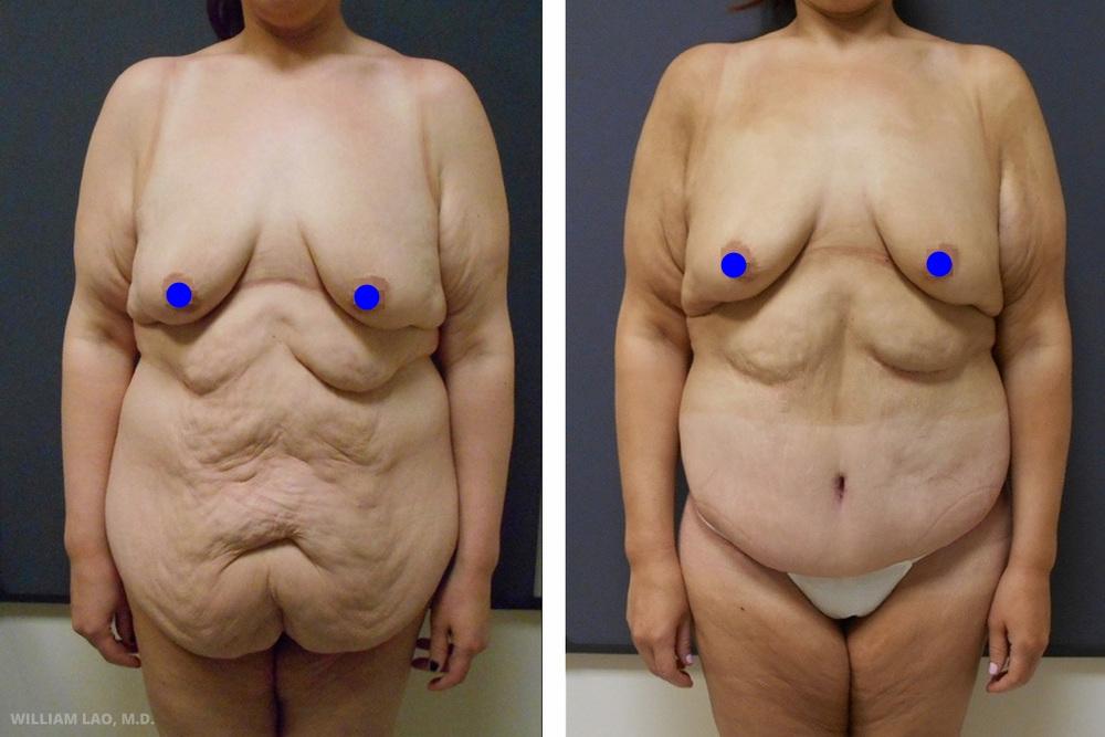 C,28 歲,白人   C育有兩名子女。透過大量減重手術,她在短時間內減掉了220磅(約100公斤)。術後大量的多餘皮膚造成美觀及功能上的問題。針對她的下腹部做了下半身圓周拉皮。她也計畫對上腹部及下垂的胸部進行其他的手術。   瞭解更多