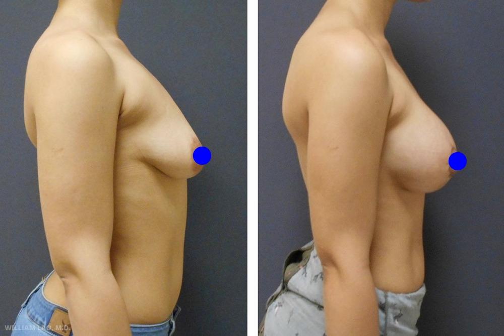 A,29 歲,白人   A事先諮詢過其他醫師。她表達了希望能以最小的切口來同時提乳又豐胸。討論後,我們決定縮小乳暈且由同樣切口進行豐胸,再將疤痕隱藏在乳暈周圍。她對手術結果非常滿意,她的胸部上未留下痕跡,甚至連她的丈夫都無法找出手術的切口處。   瞭解更多