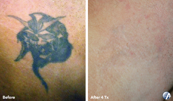 laser tattoo removal in joplin, missouri