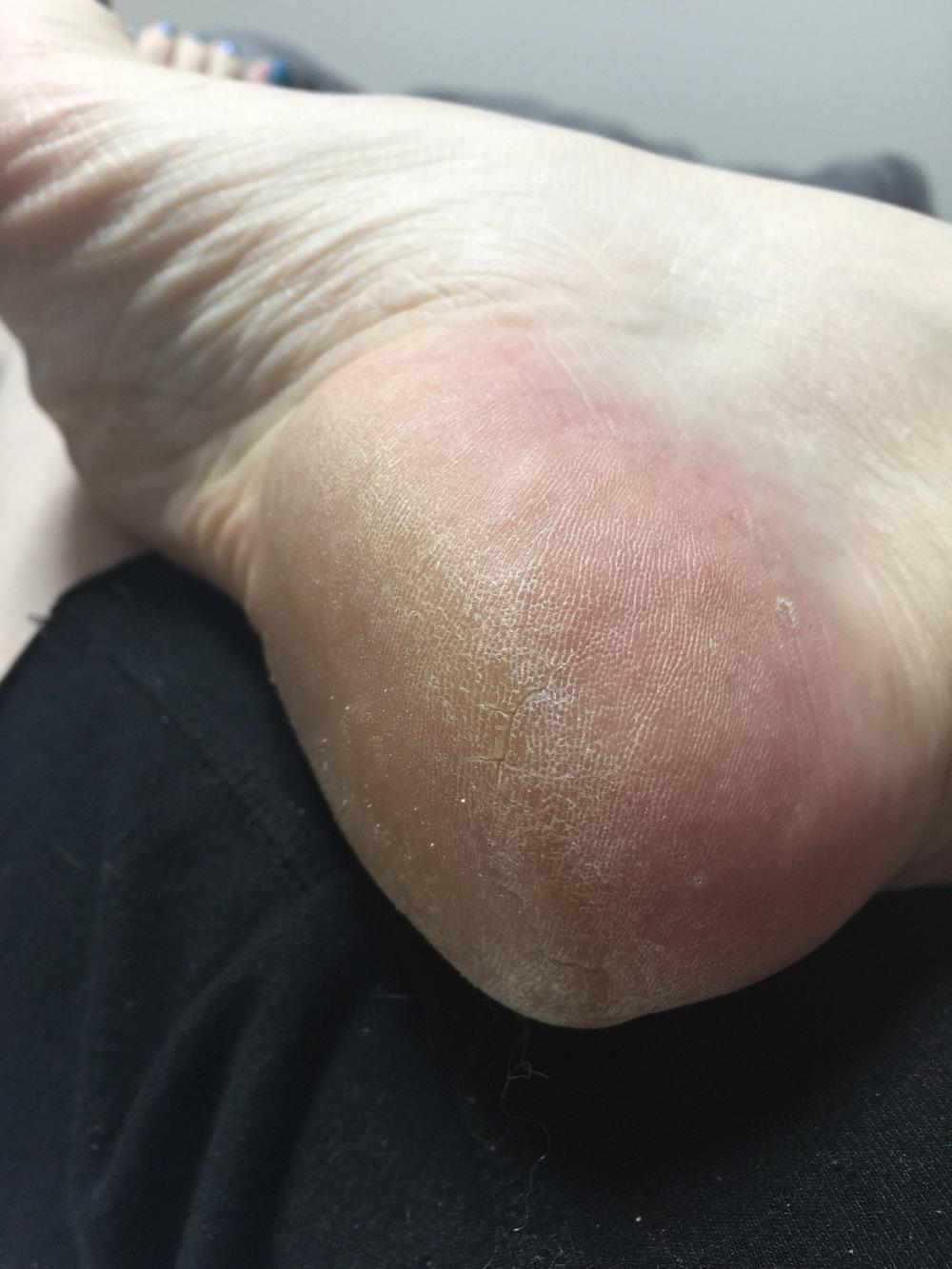 Before, dry, cracked heel