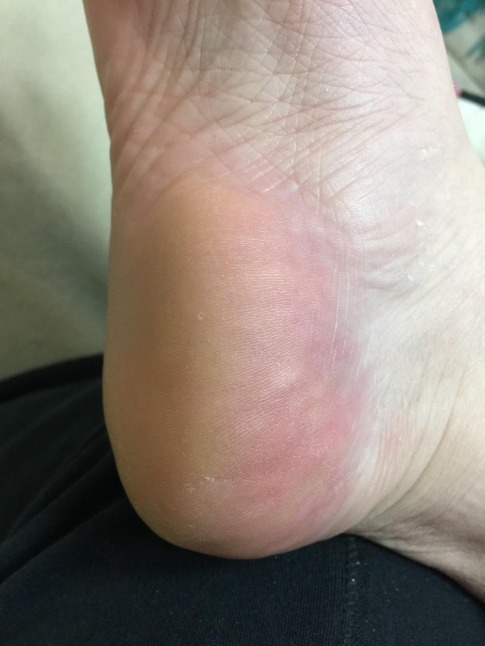 Even the terrible callous on my heel peeled away