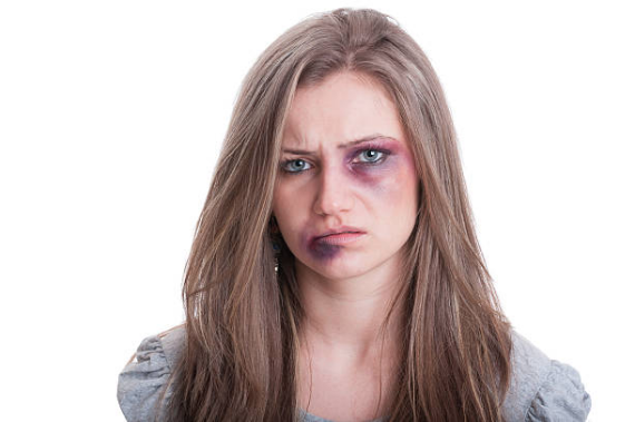 """P.S. For those of you that don't get my sense of humor I promise this is  ONLY  a joke. This is not the girl (it is a stock photo from the internet) and there were NO black eyes or beatings involved in my race. Facebook removed my post because it showed """"violent behavior"""" so in the case anyone thought I was actually serious I felt the need to clarify that I am only  JOKING  here ;)"""