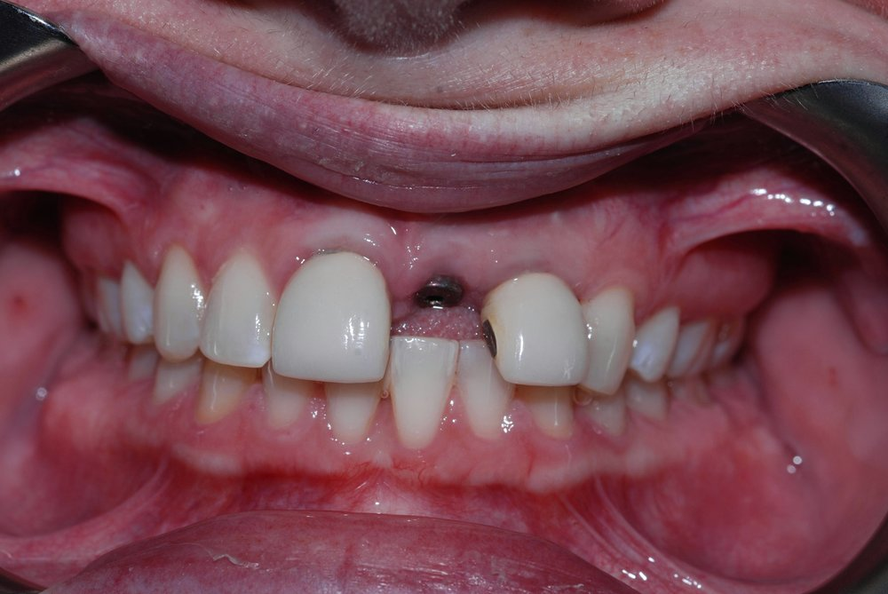 redmond-washington-dental-implants-before-belred-dentist.JPG