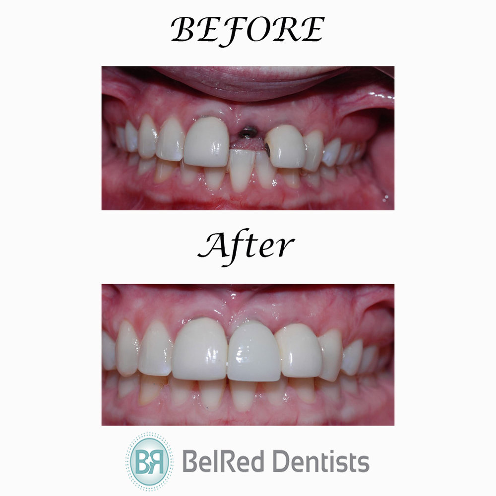redmond-implants-after-belred-dentists-bellevue.JPG