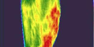 Thermal imaging - Medical