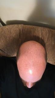 Yes, I'm bald