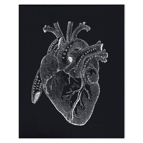 $19.99 VINTAGE ANATOMY BLACK HEART ART PRINT