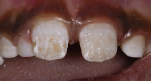 Weak tooth enamel is a huge problem in our children eating a modern diet of processed foods, refined sugars and grains.