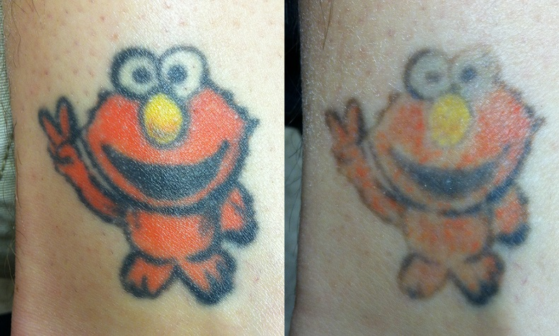 Before & After — St Louis Laser Tattoo Removal