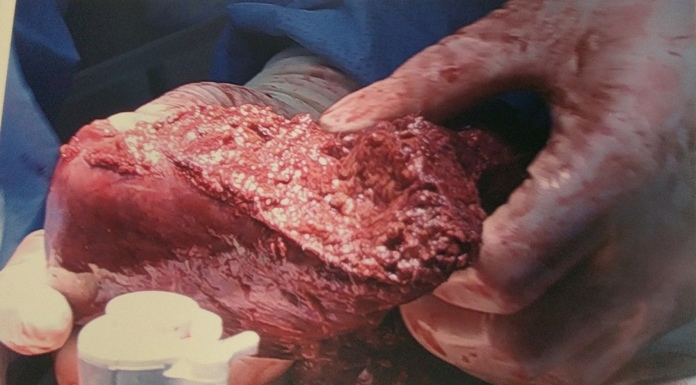 The chunk of liver they cut out of me