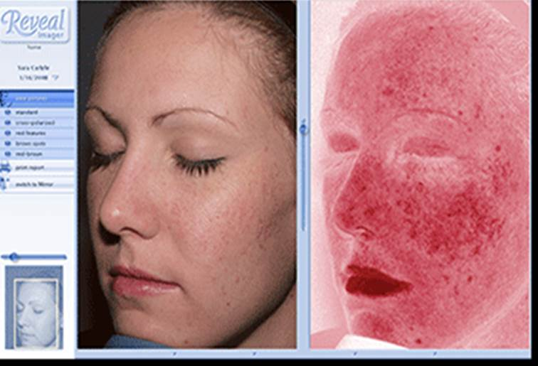 Her ser du tydelig solskader i huden, pigmentflekker, røde områder, små linjer og rynker.