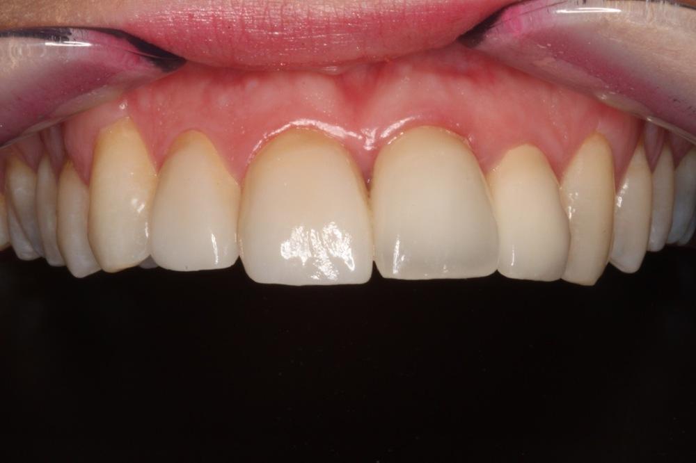 gum reshaping 2.jpg