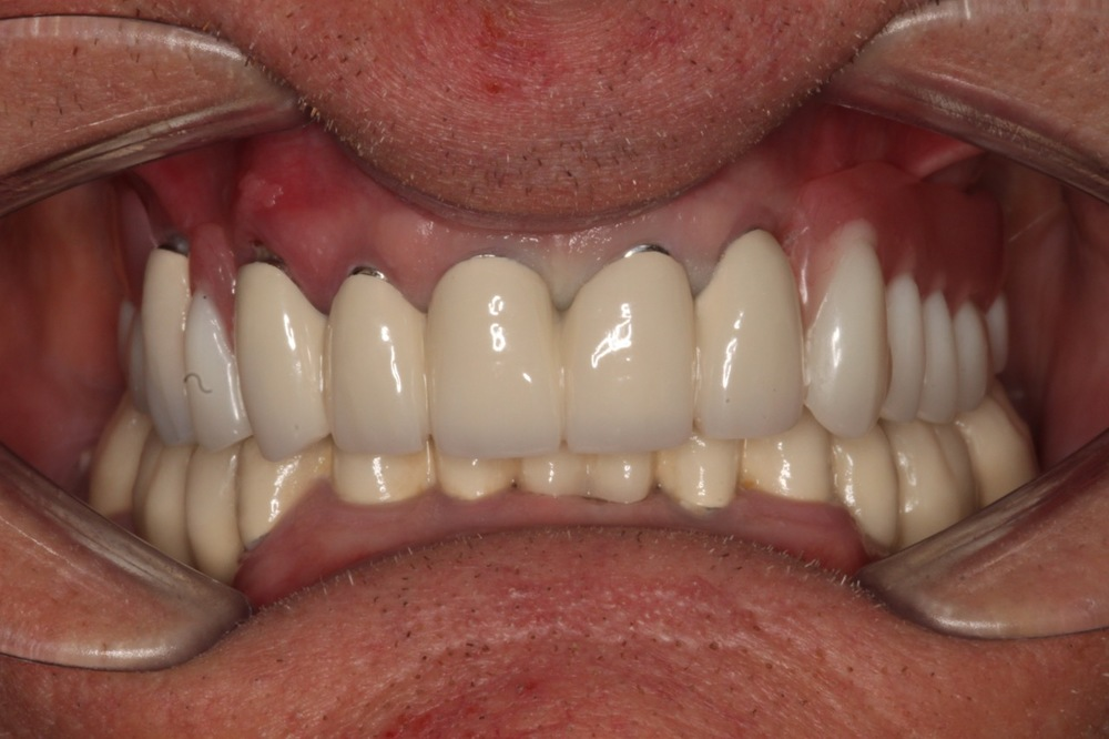 Dentures u blyton dental