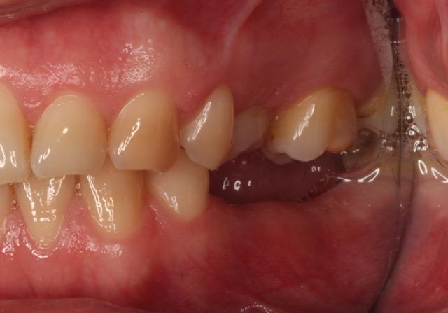 Missing teeth pre-operative view