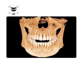 scanner-3d-scan.jpg