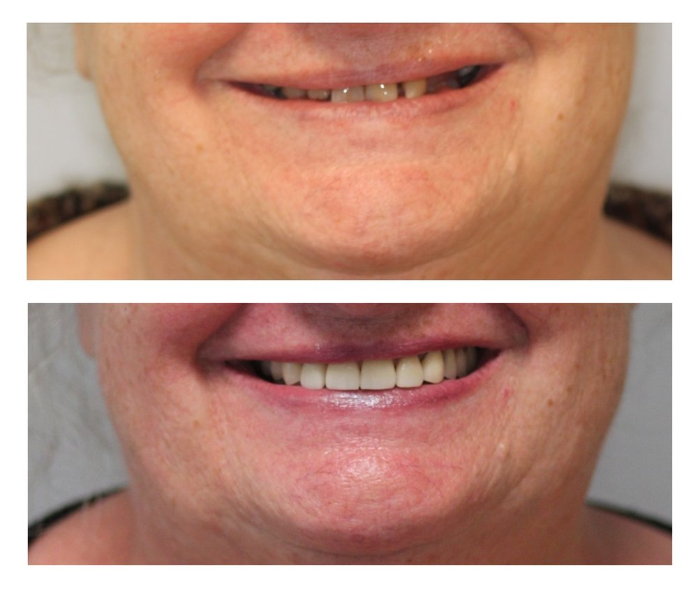 before & after veneers 2.jpg