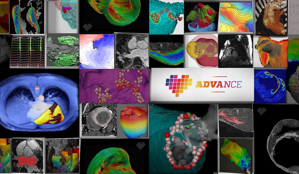 Johns-Hopkins-ADVANCE-8.jpg