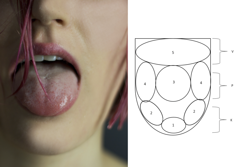 Tongue diagnosis.png