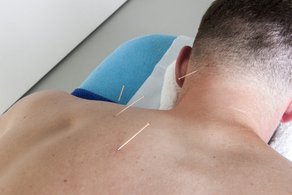 Possibility to integrate Dry Needing (Medical Acupuncture) within this treatment. Click here to read more about Dry Needling.