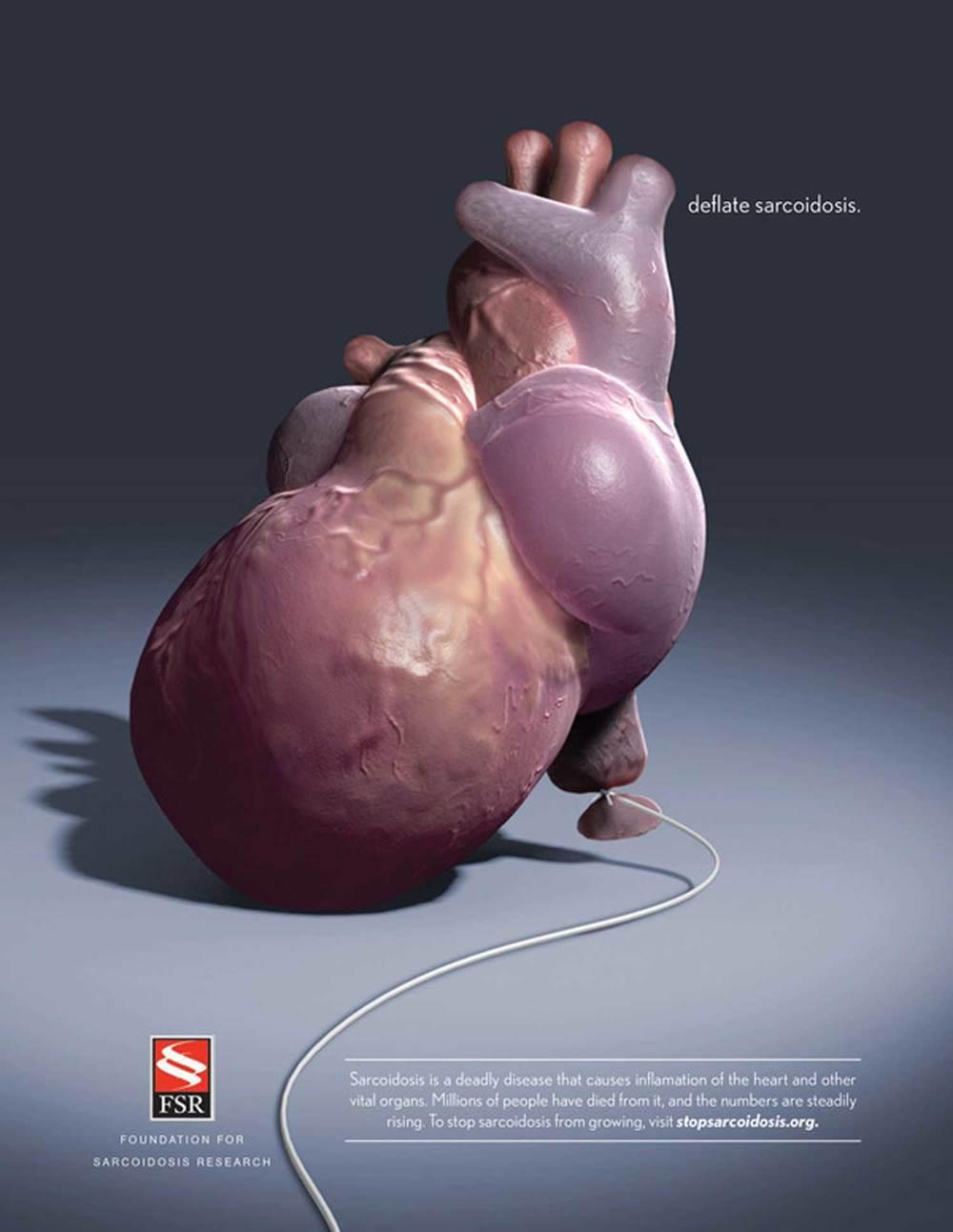 Sarcoidosis_Heart_1500px.jpg