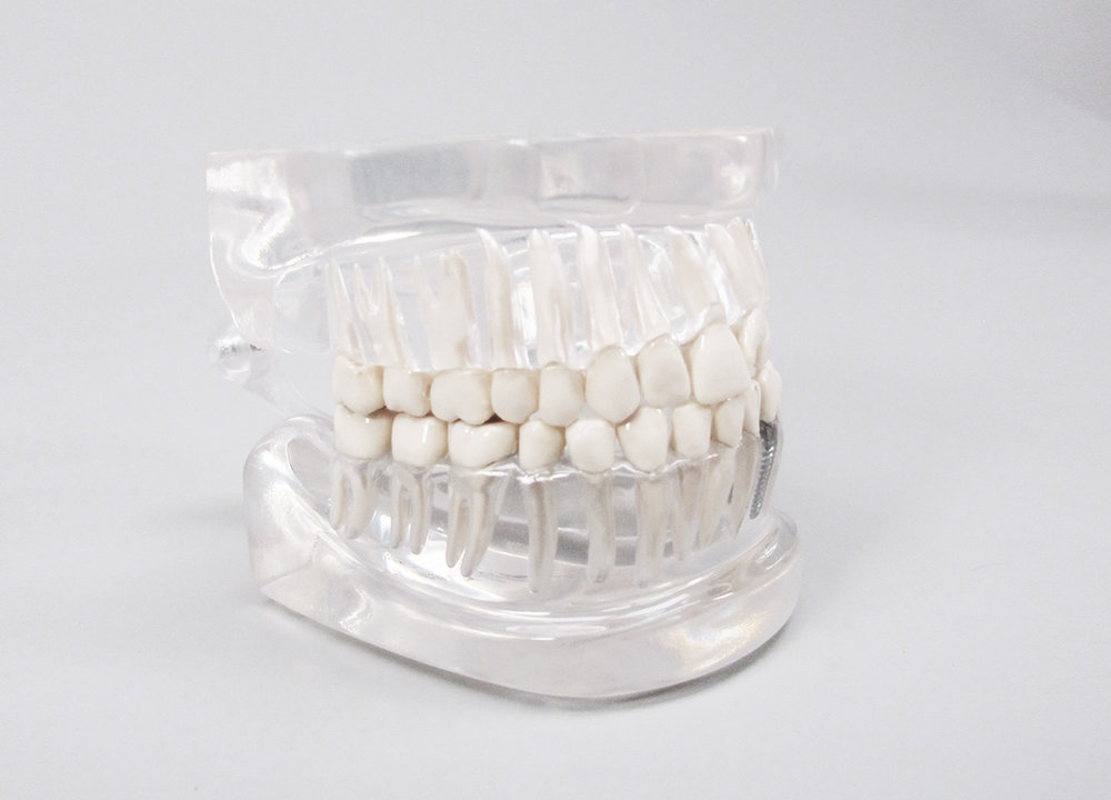 Dental Models - Dental models showcase implants and how maintaining a healthy mouth can prevent disease.