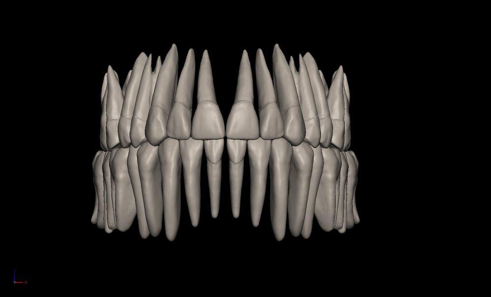 Teeth1.jpg