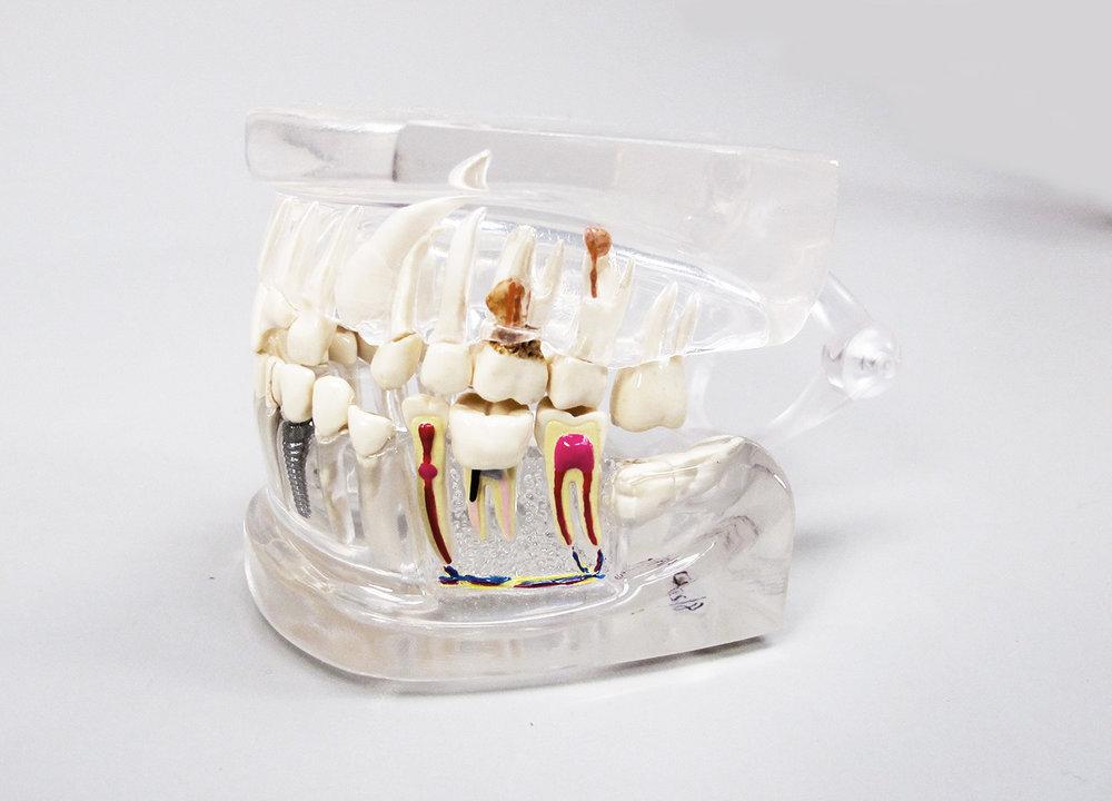 teeth_2.jpg