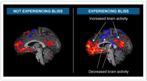 Learnbliss.com  - fMRI scans which measure brain activity by looking at blood flow. Performed by Dr. Zoran Josipovic of NYU.