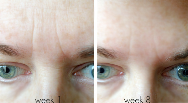 Tria Age-Defying Laser Before & After Photos