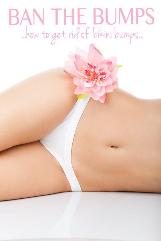 Ban the Bumps: How to Get Rid of Bikini Bumps