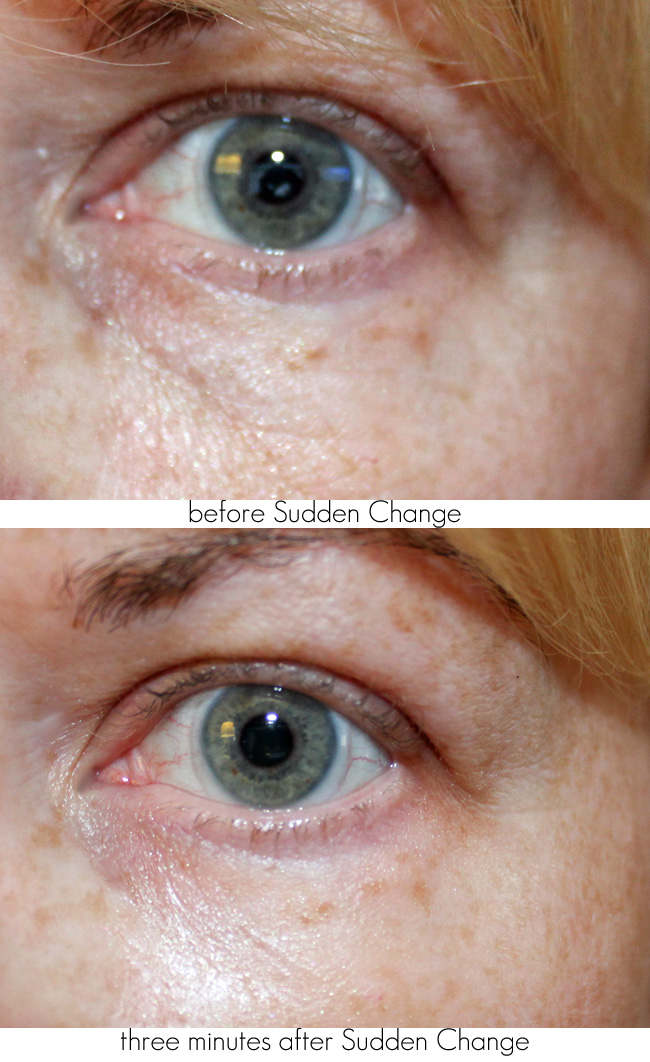 Sudden Change Under-Eye Firming Serum Before + After