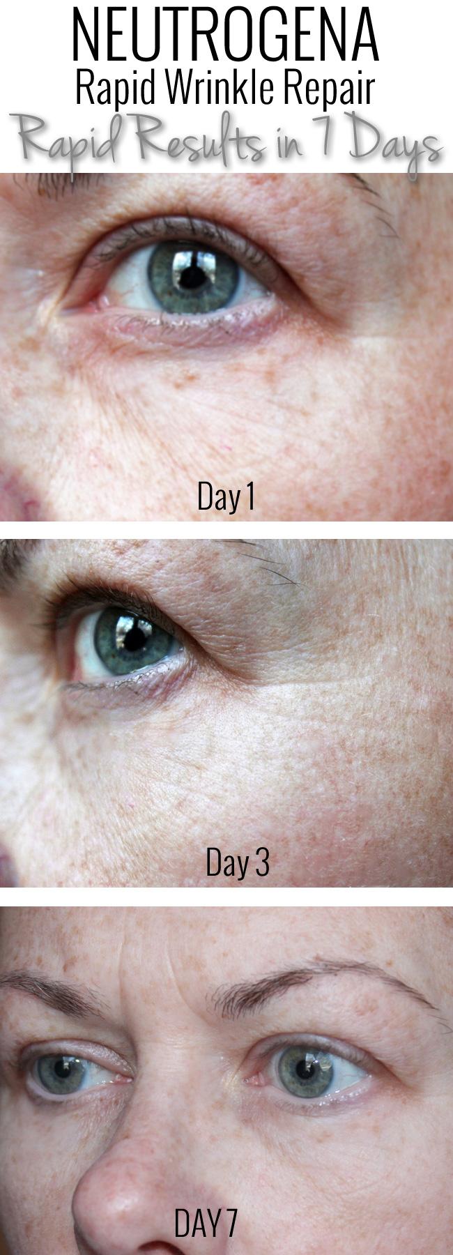 Neutrogena Rapid Wrinkle Repair Rapid Results