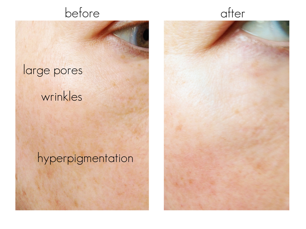 Tria Age Defying Laser Results And Video Beautiful
