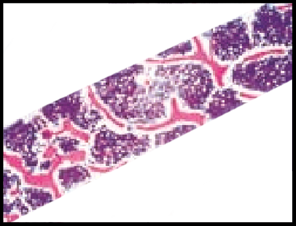 Under microscopic examination, the bone dowel's micro-vascular network can be seen.